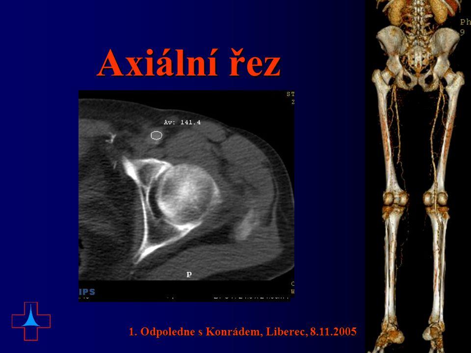 Axiální řez 1. Odpoledne s Konrádem, Liberec, 8.11.2005