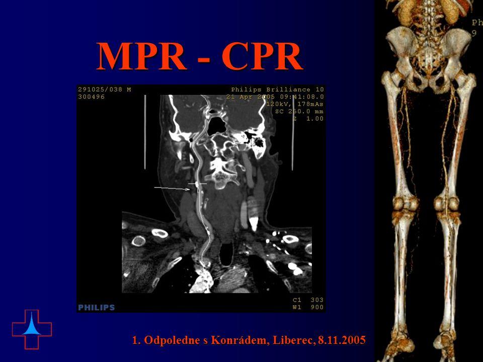 MPR - CPR 1. Odpoledne s Konrádem, Liberec, 8.11.2005