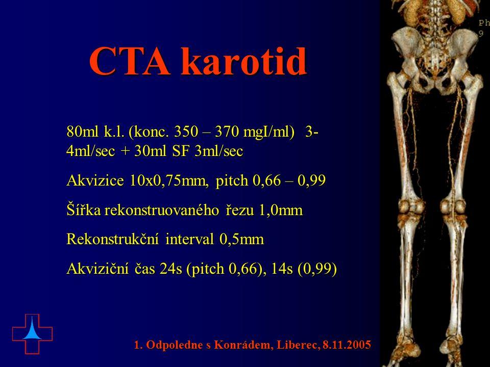 CTA karotid 80ml k.l. (konc. 350 – 370 mgI/ml) 3- 4ml/sec + 30ml SF 3ml/sec Akvizice 10x0,75mm, pitch 0,66 – 0,99 Šířka rekonstruovaného řezu 1,0mm Re