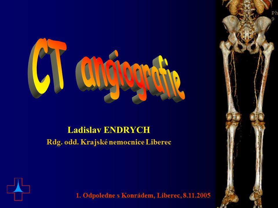 CTA intrakraniálních tepen 1. Odpoledne s Konrádem, Liberec, 8.11.2005