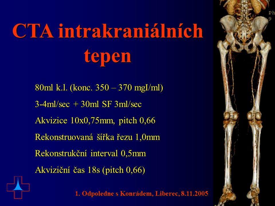 CTA intrakraniálních tepen 80ml k.l. (konc. 350 – 370 mgI/ml) 3-4ml/sec + 30ml SF 3ml/sec Akvizice 10x0,75mm, pitch 0,66 Rekonstruovaná šířka řezu 1,0
