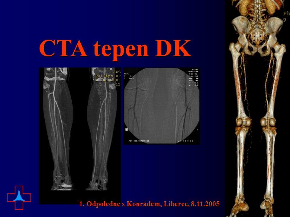 CTA tepen DK 1. Odpoledne s Konrádem, Liberec, 8.11.2005
