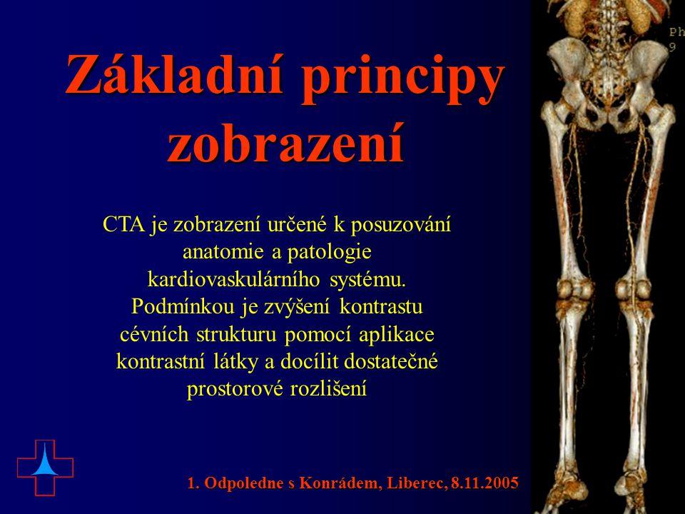 Základní principy zobrazení CTA je zobrazení určené k posuzování anatomie a patologie kardiovaskulárního systému. Podmínkou je zvýšení kontrastu cévní