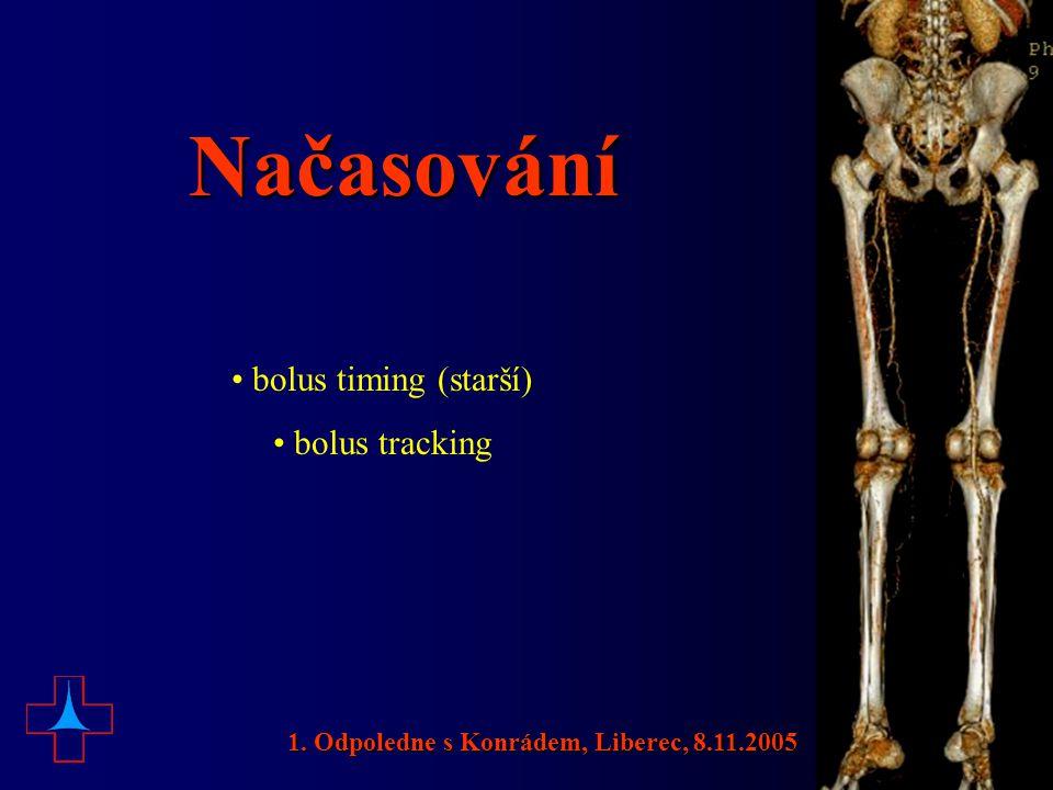 Načasování • bolus timing (starší) • bolus tracking 1. Odpoledne s Konrádem, Liberec, 8.11.2005
