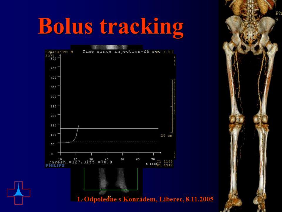 Bolus tracking 1. Odpoledne s Konrádem, Liberec, 8.11.2005