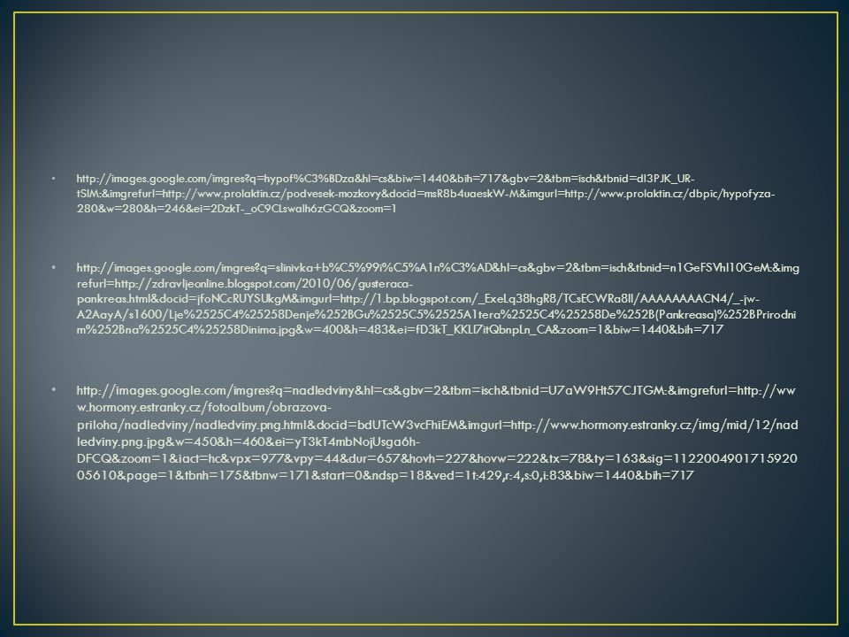 • http://images.google.com/imgres?q=hypof%C3%BDza&hl=cs&biw=1440&bih=717&gbv=2&tbm=isch&tbnid=dI3PJK_UR- tSlM:&imgrefurl=http://www.prolaktin.cz/podvesek-mozkovy&docid=msR8b4uaeskW-M&imgurl=http://www.prolaktin.cz/dbpic/hypofyza- 280&w=280&h=246&ei=2DzkT-_oC9CLswaIh6zGCQ&zoom=1 • http://images.google.com/imgres?q=slinivka+b%C5%99i%C5%A1n%C3%AD&hl=cs&gbv=2&tbm=isch&tbnid=n1GeFSVhI10GeM:&img refurl=http://zdravljeonline.blogspot.com/2010/06/gusteraca- pankreas.html&docid=jfoNCcRUYSUkgM&imgurl=http://1.bp.blogspot.com/_ExeLq38hgR8/TCsECWRa8II/AAAAAAAACN4/_-jw- A2AayA/s1600/Lje%2525C4%25258Denje%252BGu%2525C5%2525A1tera%2525C4%25258De%252B(Pankreasa)%252BPrirodni m%252Bna%2525C4%25258Dinima.jpg&w=400&h=483&ei=fD3kT_KKLI7itQbnpLn_CA&zoom=1&biw=1440&bih=717 • http://images.google.com/imgres?q=nadledviny&hl=cs&gbv=2&tbm=isch&tbnid=U7aW9Ht57CJTGM:&imgrefurl=http://ww w.hormony.estranky.cz/fotoalbum/obrazova- priloha/nadledviny/nadledviny.png.html&docid=bdUTcW3vcFhiEM&imgurl=http://www.hormony.estranky.cz/img/mid/12/nad ledviny.png.jpg&w=450&h=460&ei=yT3kT4mbNojUsga6h- DFCQ&zoom=1&iact=hc&vpx=977&vpy=44&dur=657&hovh=227&hovw=222&tx=78&ty=163&sig=1122004901715920 05610&page=1&tbnh=175&tbnw=171&start=0&ndsp=18&ved=1t:429,r:4,s:0,i:83&biw=1440&bih=717