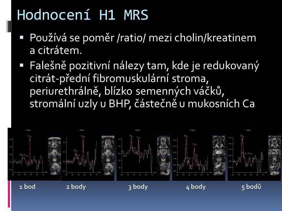 Hodnocení H1 MRS  Používá se poměr /ratio/ mezi cholin/kreatinem a citrátem.  Falešně pozitivní nálezy tam, kde je redukovaný citrát-přední fibromus