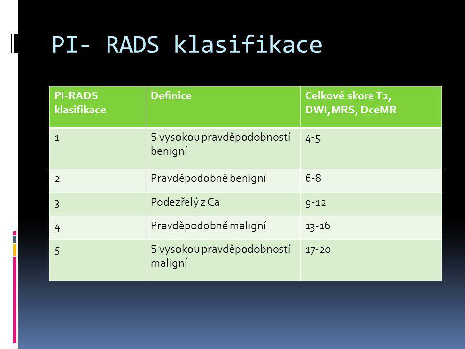 PI- RADS klasifikace DefiniceCelkové skore T2, DWI,MRS, DceMR 1S vysokou pravděpodobností benigní 4-5 2Pravděpodobně benigní6-8 3Podezřelý z Ca9-12 4P