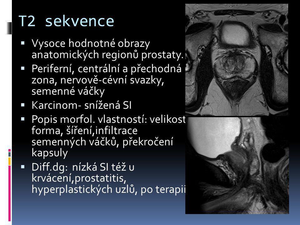 T2 sekvence  Vysoce hodnotné obrazy anatomických regionů prostaty.  Periferní, centrální a přechodná zona, nervově-cévní svazky, semenné váčky  Kar