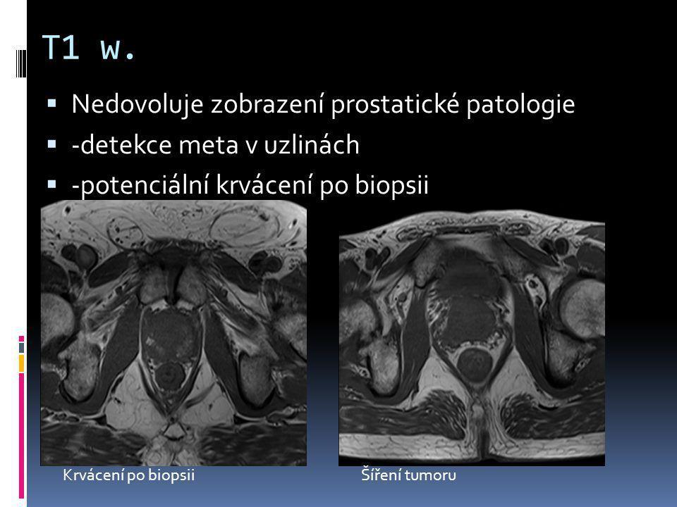 T1 w.  Nedovoluje zobrazení prostatické patologie  -detekce meta v uzlinách  -potenciální krvácení po biopsii Krvácení po biopsiiŠíření tumoru