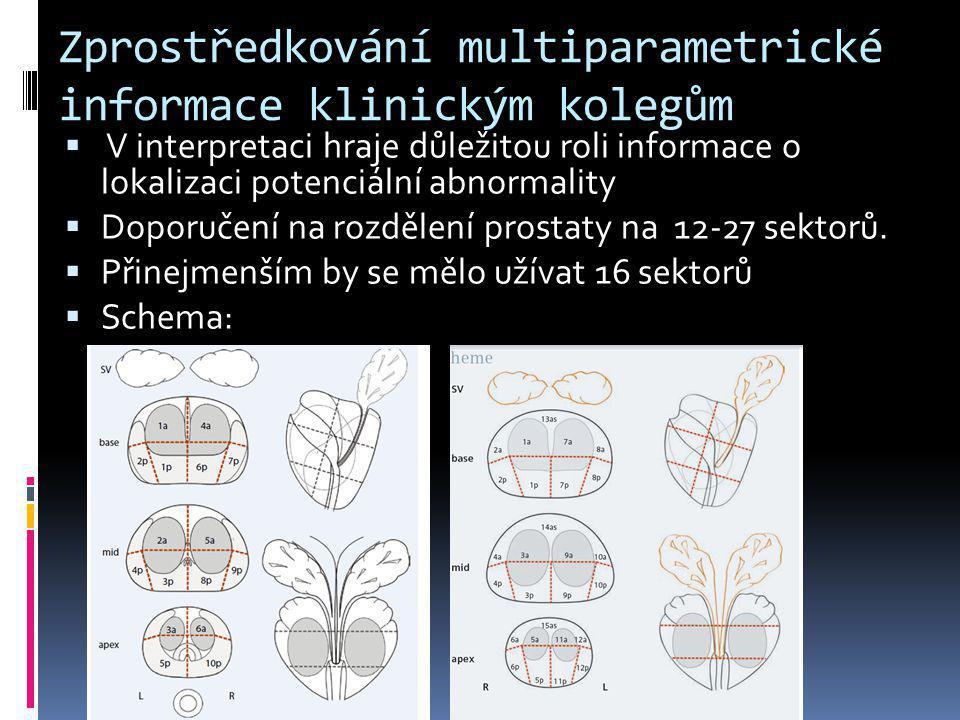 Zprostředkování multiparametrické informace klinickým kolegům  V interpretaci hraje důležitou roli informace o lokalizaci potenciální abnormality  D