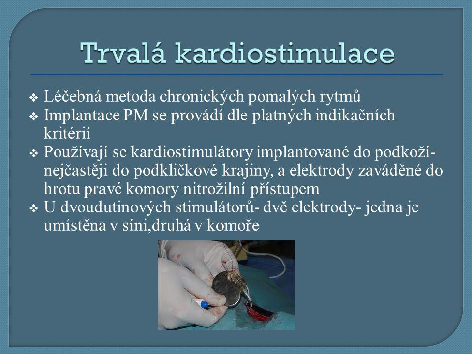  Léčebná metoda chronických pomalých rytmů  Implantace PM se provádí dle platných indikačních kritérií  Používají se kardiostimulátory implantované