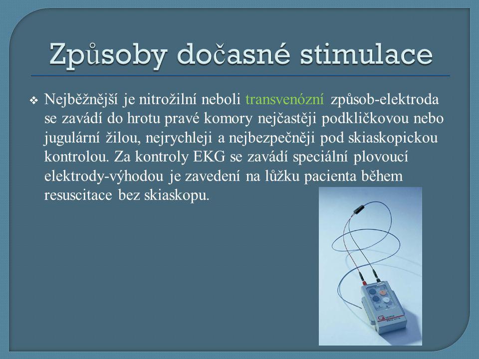  Nejběžnější je nitrožilní neboli transvenózní způsob-elektroda se zavádí do hrotu pravé komory nejčastěji podkličkovou nebo jugulární žilou, nejrych