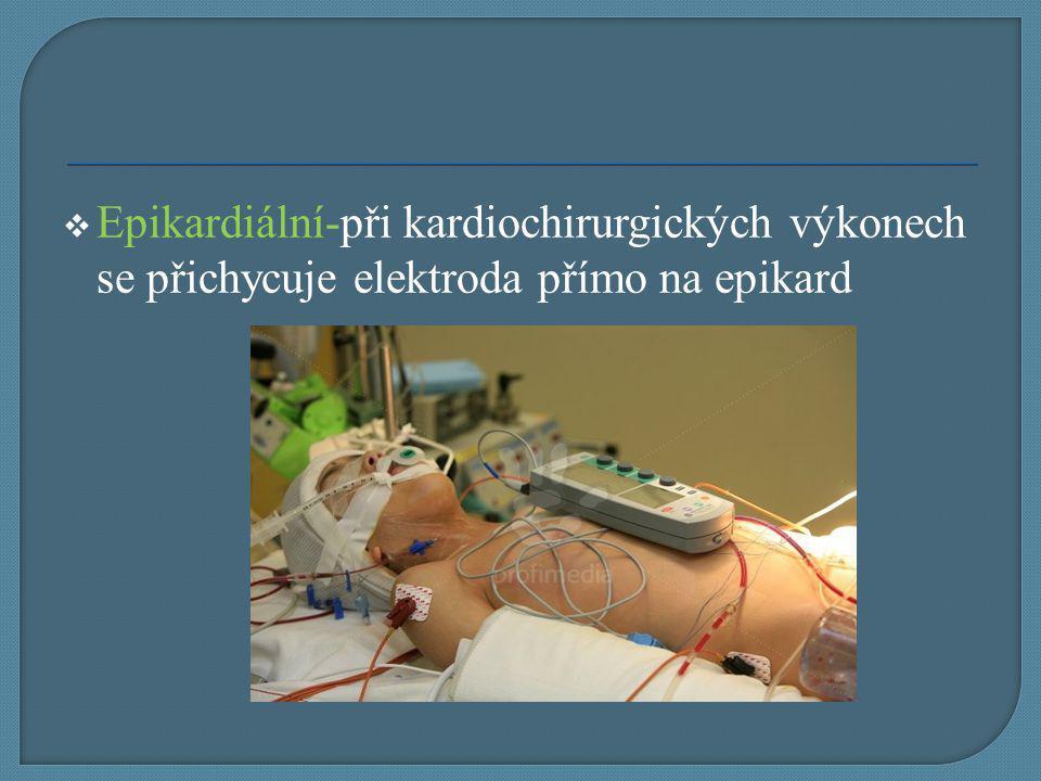  Epikardiální-při kardiochirurgických výkonech se přichycuje elektroda přímo na epikard