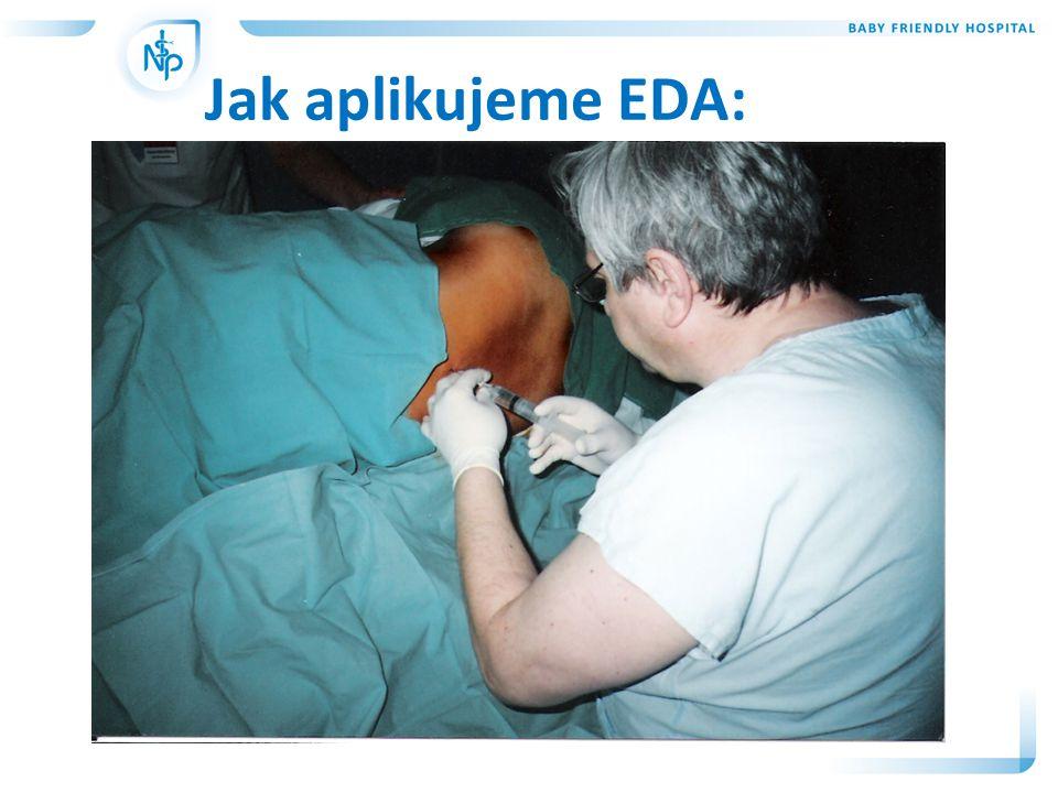 Ošetřovatelské diagnózy: • Potenciální riziko infekce z důvodu poruchy kožní integrity • Nedostatek informací o probíhajících vyšetřeních • Strach z průběhu porodu • Akutní bolest