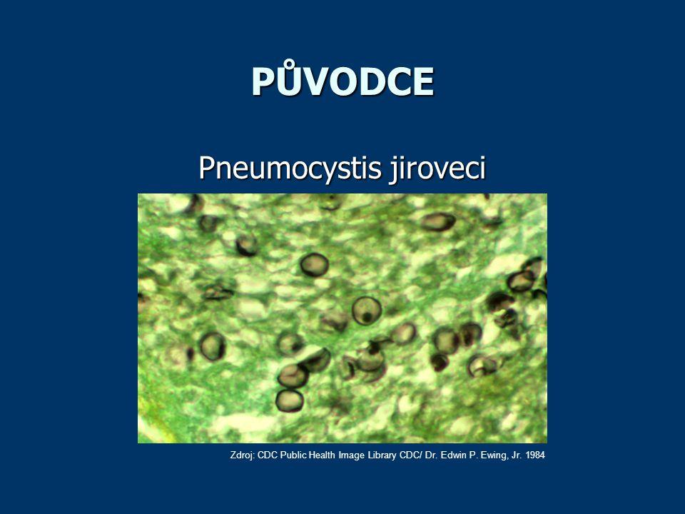 PŮVODCE Pneumocystis jiroveci Zdroj: CDC Public Health Image Library CDC/ Dr. Edwin P. Ewing, Jr. 1984