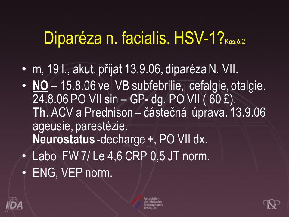 Diparéza n. facialis. HSV-1? Kas.č.2 • m, 19 l., akut. přijat 13.9.06, diparéza N. VII. • NO – 15.8.06 ve VB subfebrilie, cefalgie, otalgie. 24.8.06 P