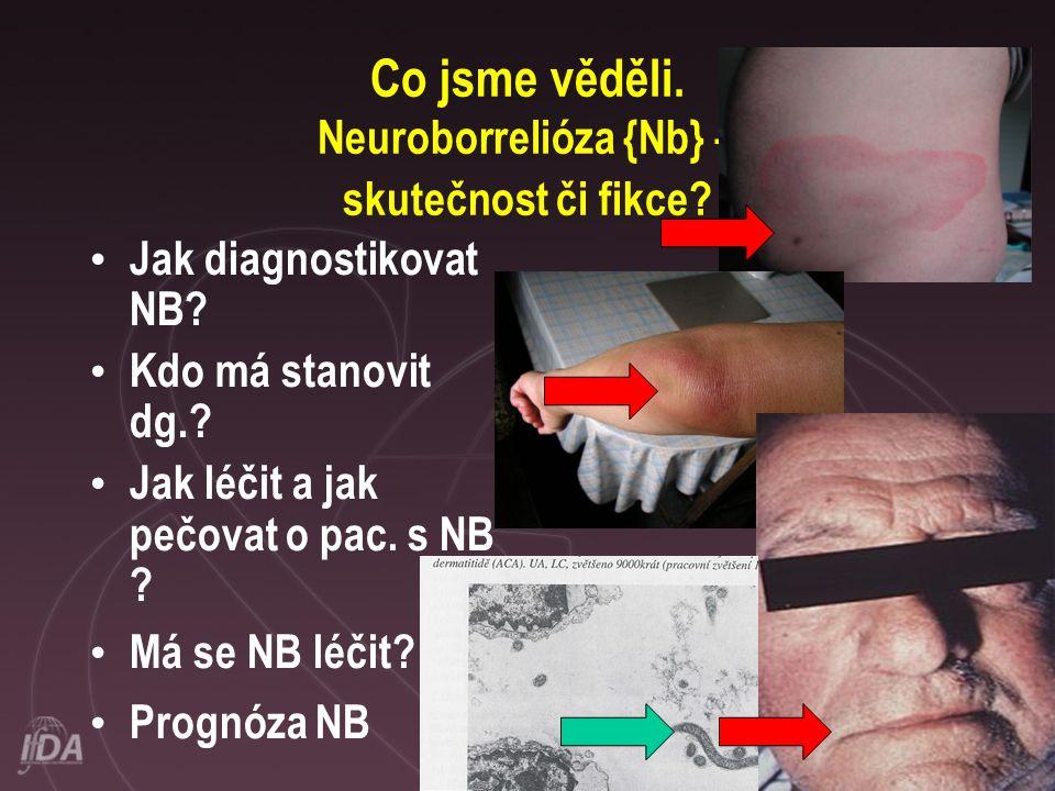 Co jsme věděli. Neuroborrelióza {Nb} – skutečnost či fikce? • Jak diagnostikovat NB? • Kdo má stanovit dg.? • Jak léčit a jak pečovat o pac. s NB ? •