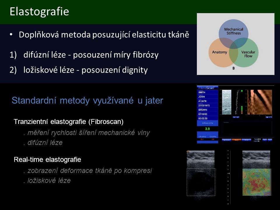 ARFI (Acoustic Radiation Force Impulse Imaging) • Exkluzivně Acuson S 2000 (Siemens) • metoda využívá pouze ultrazvukové vlny • nevyžaduje mechanickou kompresi • nižší závislost na zkušenostech vyšetřujícího • nižší závislost na vlastnostech okolních tkání a orgánů • o něco větší dosah 3 pulzy vysílané postupně do každého řádku oblasti zájmu (zleva doprava) detekční puls (stav před kompresí) tlakový puls detekční puls (stav po kompresi)