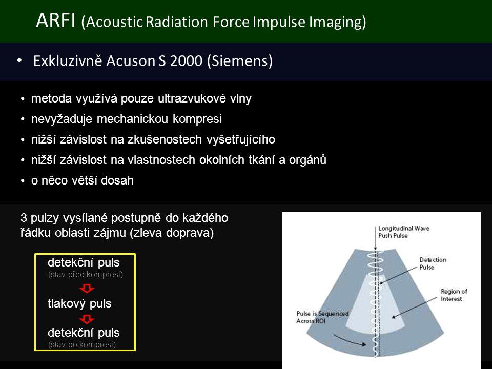 ARFI (Acoustic Radiation Force Impulse Imaging) • Exkluzivně Acuson S 2000 (Siemens) • metoda využívá pouze ultrazvukové vlny • nevyžaduje mechanickou