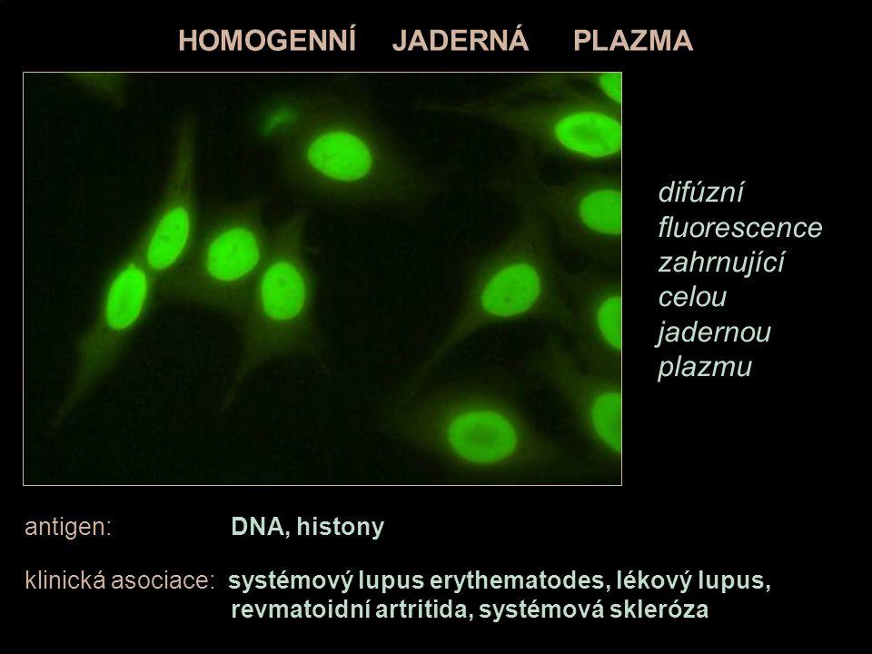 antigen: DNA, histony klinická asociace: systémový lupus erythematodes, lékový lupus, revmatoidní artritida, systémová skleróza HOMOGENNÍ JADERNÁ PLAZ