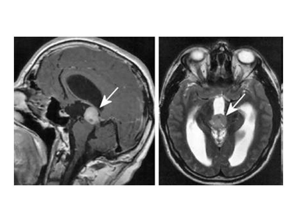 Podvěsek mozkový (Hypofýza) • je asi 1 cm veliká žláza, spojená krátkou stopkou s mezimozkem • leží v tureckém sedle kosti klínové • skládá se ze 3 částí – ty se od sebe liší svou funkcí: a) přední lalok b ) střední lalok c) zadní lalok • následuje obrázek