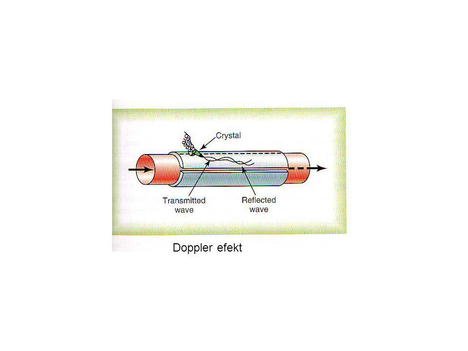 Doppler efekt