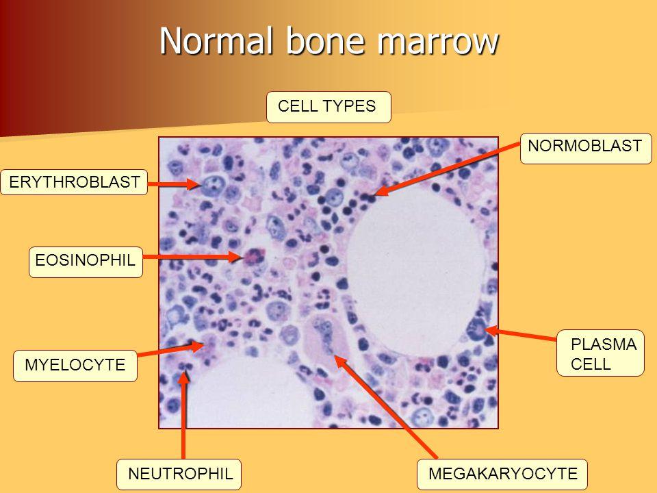 Normal bone marrow CELL TYPES ERYTHROBLAST EOSINOPHIL MYELOCYTE NEUTROPHILMEGAKARYOCYTE PLASMA CELL NORMOBLAST