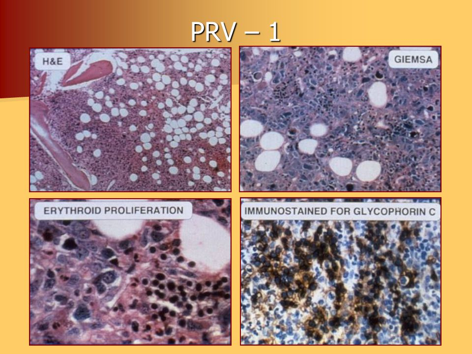PRV – 1