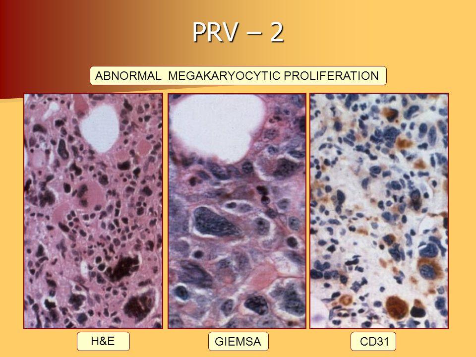 PRV – 2 ABNORMAL MEGAKARYOCYTIC PROLIFERATION H&E GIEMSACD31