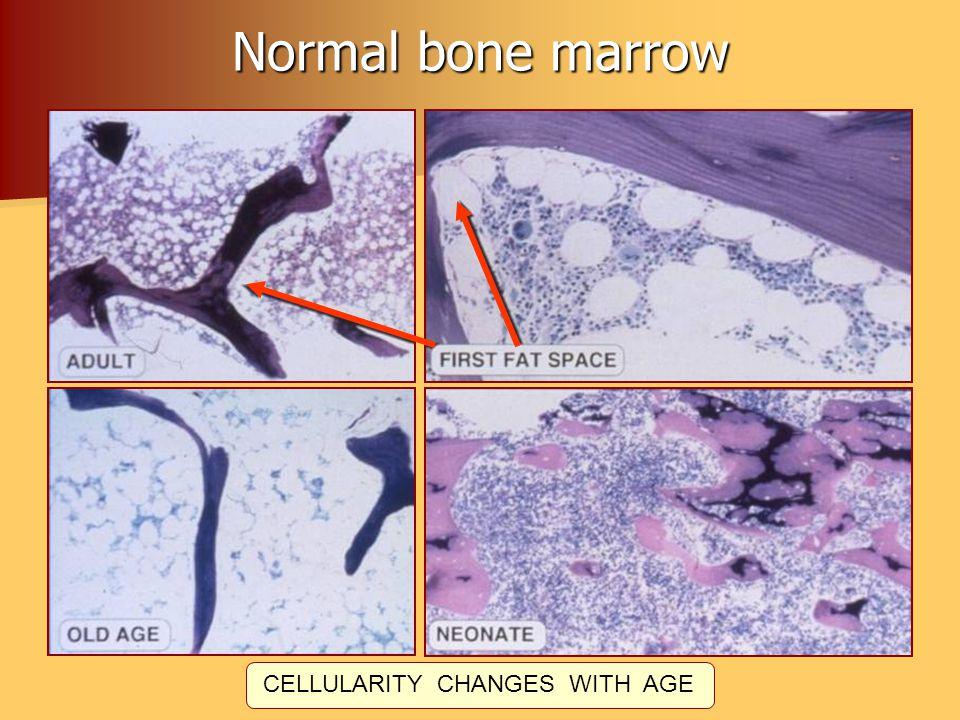 Normal bone marrow CELL TYPES – BONE OSTEOBLASTSOSTEOCLASTS