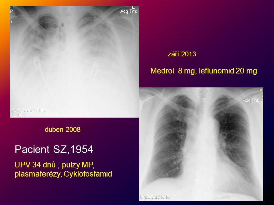 Pacient SZ,1954 UPV 34 dnů, pulzy MP, plasmaferézy, Cyklofosfamid duben 2008 září 2013 Medrol 8 mg, leflunomid 20 mg