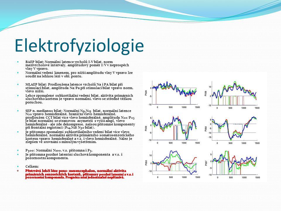 Elektrofyziologie