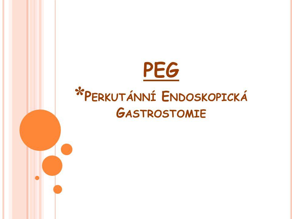C O JE PEG ( PEJ ) ??.
