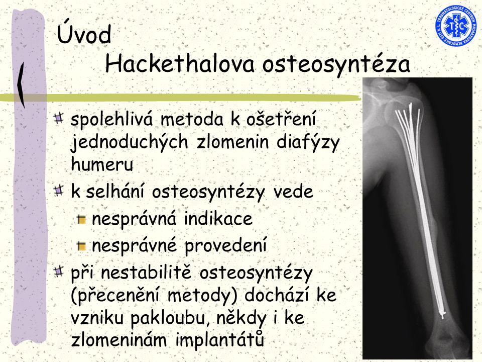 Úvod Hackethalova osteosyntéza spolehlivá metoda k ošetření jednoduchých zlomenin diafýzy humeru k selhání osteosyntézy vede nesprávná indikace nesprávné provedení při nestabilitě osteosyntézy (přecenění metody) dochází ke vzniku pakloubu, někdy i ke zlomeninám implantátů