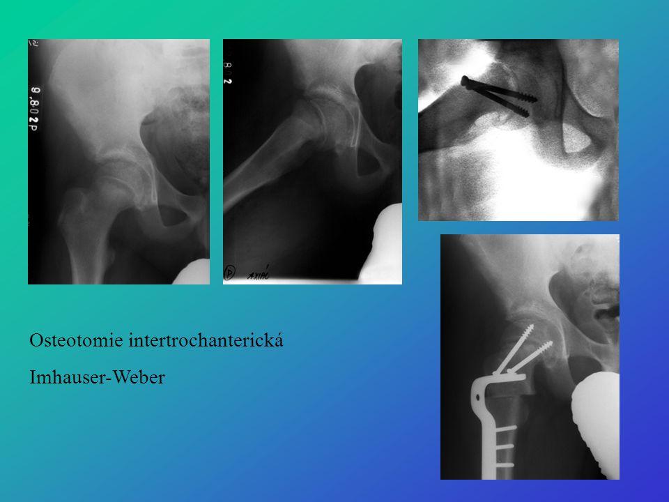 Osteotomie intertrochanterická Imhauser-Weber