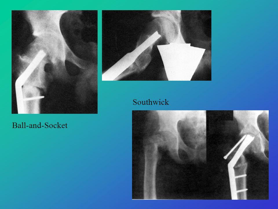Ball-and-Socket Southwick