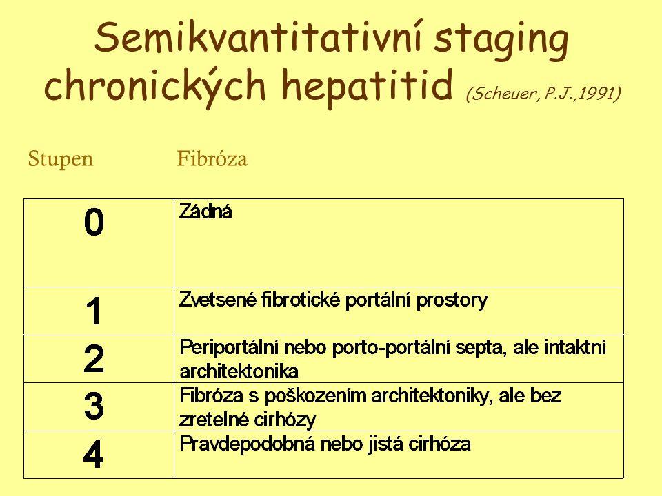 Semikvantitativní staging chronických hepatitid (Scheuer, P.J.,1991) StupenFibróza