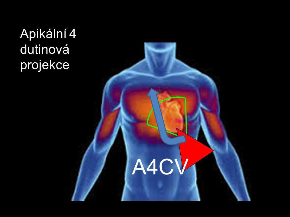 Apikální 4 dutinová projekce A4CV