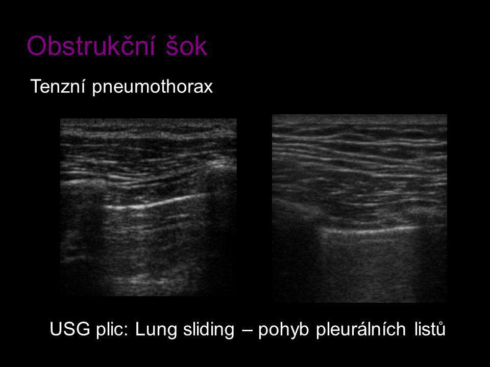 Obstrukční šok Tenzní pneumothorax USG plic: Lung sliding – pohyb pleurálních listů