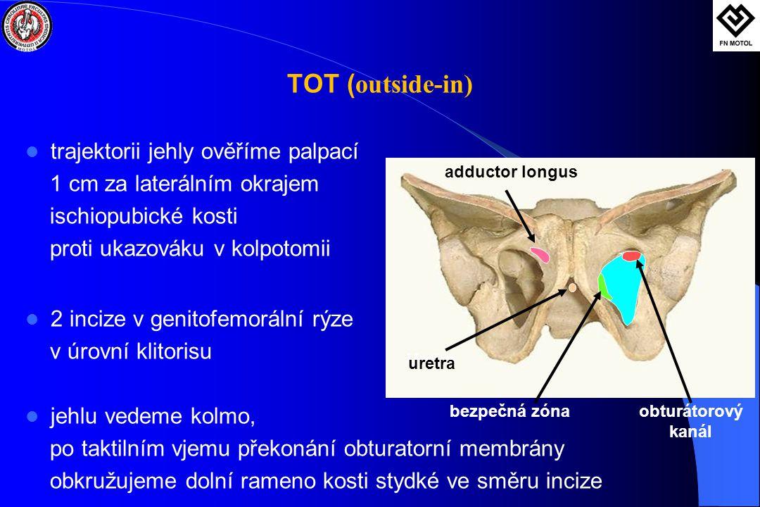 TOT ( outside-in)  trajektorii jehly ověříme palpací 1 cm za laterálním okrajem ischiopubické kosti proti ukazováku v kolpotomii  2 incize v genitofemorální rýze v úrovní klitorisu  jehlu vedeme kolmo, po taktilním vjemu překonání obturatorní membrány obkružujeme dolní rameno kosti stydké ve směru incize obturátorový kanál Uretra bezpečná zóna adductor longus uretra