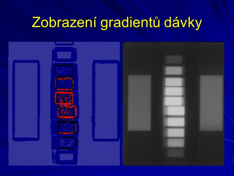 Zobrazení gradientů dávky