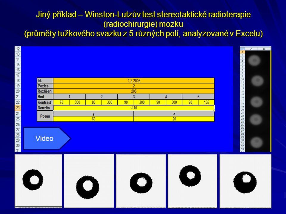 Jiný příklad – Winston-Lutzův test stereotaktické radioterapie (radiochirurgie) mozku (průměty tužkového svazku z 5 různých polí, analyzované v Excelu) Video
