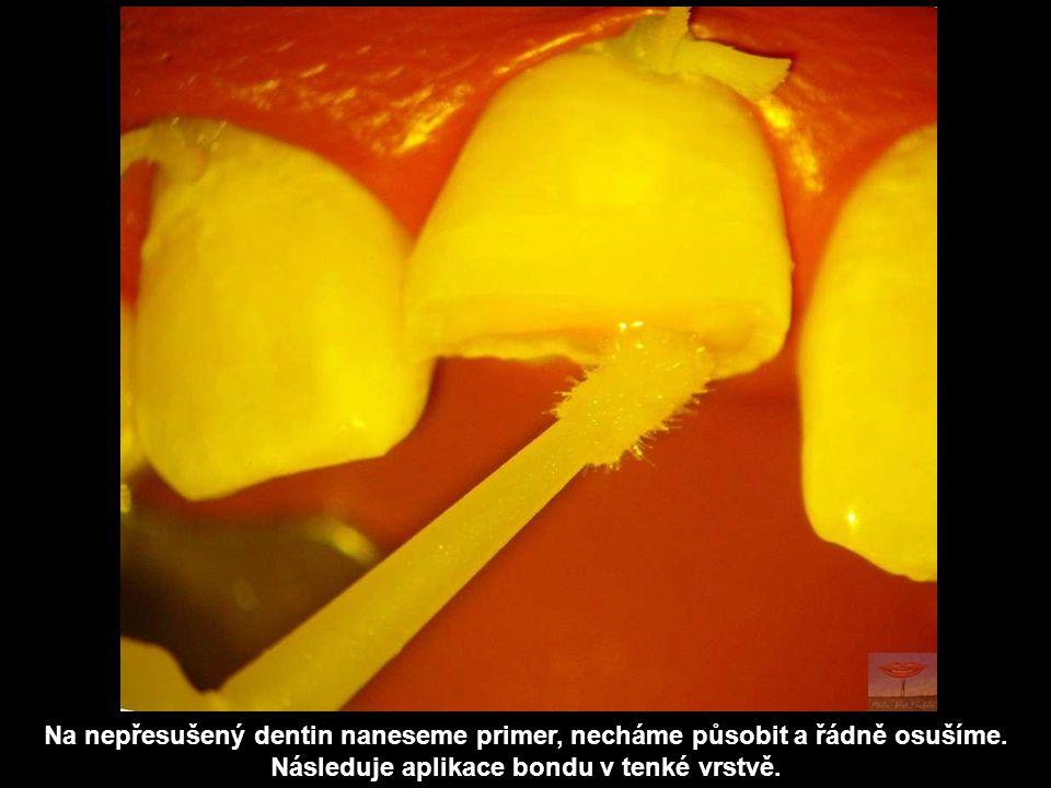 Na nepřesušený dentin naneseme primer, necháme působit a řádně osušíme. Následuje aplikace bondu v tenké vrstvě.