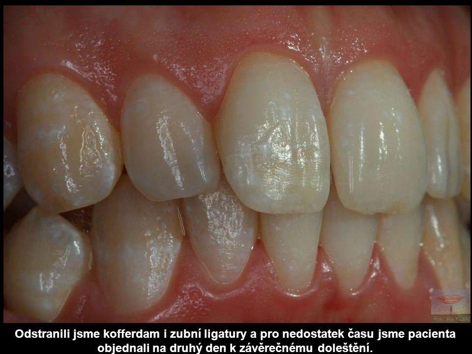 Odstranili jsme kofferdam i zubní ligatury a pro nedostatek času jsme pacienta objednali na druhý den k závěrečnému doleštění.