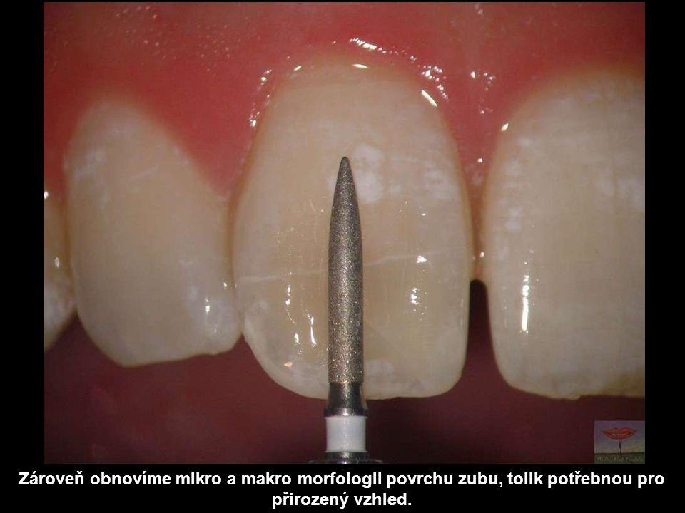 Zároveň obnovíme mikro a makro morfologii povrchu zubu, tolik potřebnou pro přirozený vzhled.