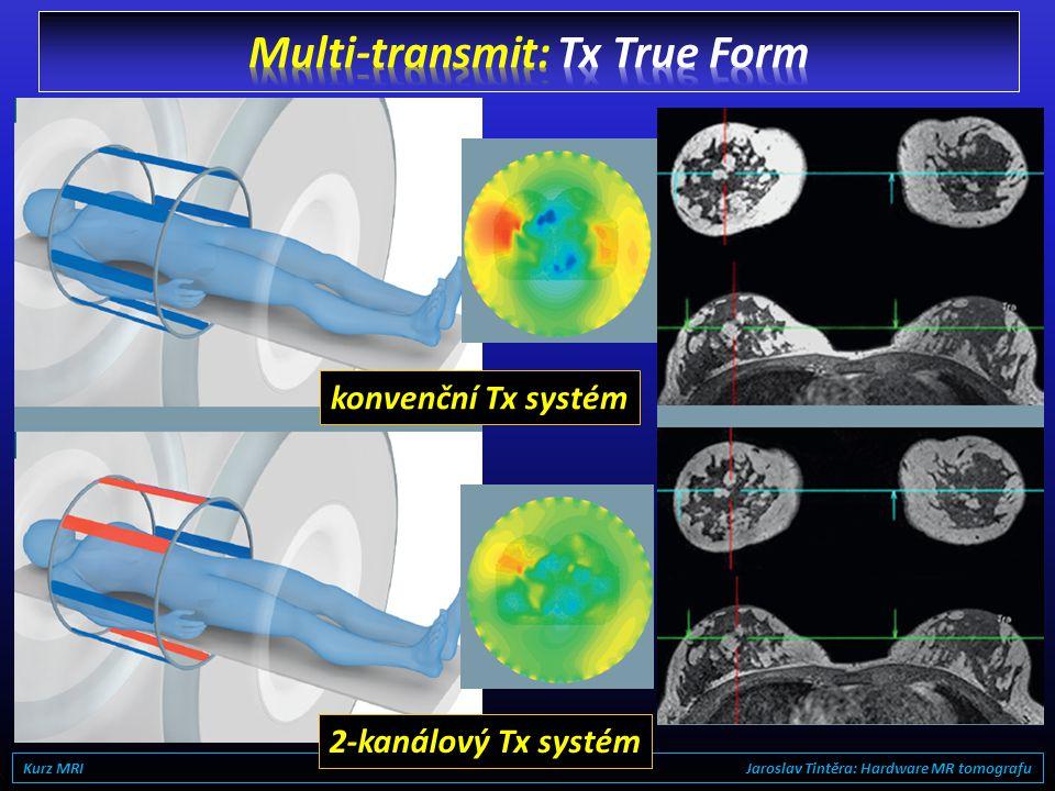 3T Kurz MRI Jaroslav Tintěra: Hardware MR tomografu
