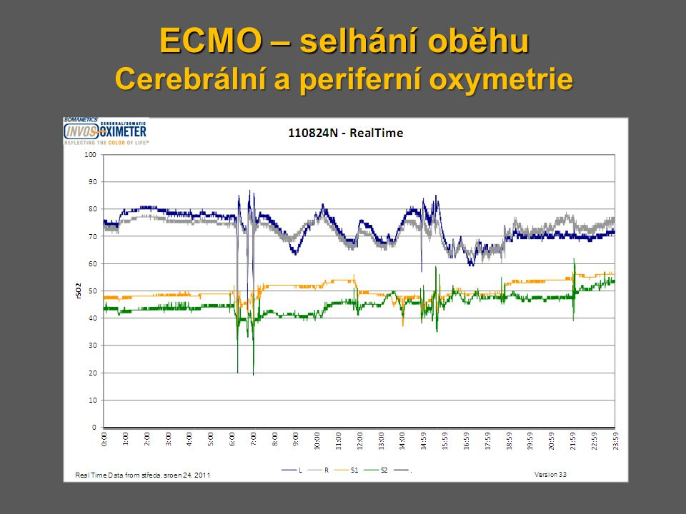 ECMO – selhání oběhu Cerebrální a periferní oxymetrie