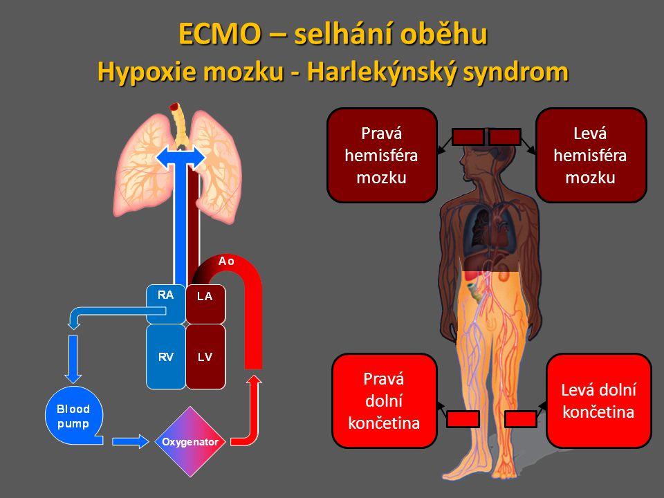 Levá hemisféra mozku Levá dolní končetina Pravá hemosféra mozku Pravá dolní končetina Pravá hemisféra mozku Levá hemisféra mozku ECMO – selhání oběhu