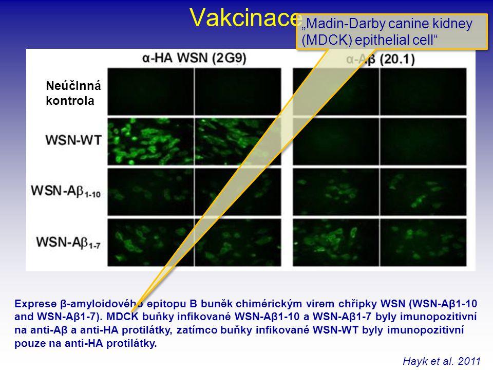 Vakcinace Exprese β-amyloidového epitopu B buněk chimérickým virem chřipky WSN (WSN-Aβ1-10 and WSN-Aβ1-7). MDCK buňky infikované WSN-Aβ1-10 a WSN-Aβ1-